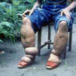Dünyanın En Garip Hastalıkları