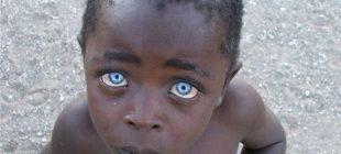 Gözlerin Sözlerden Çok Şey Söylediği 22 Fotoğraf