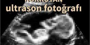 En garip ultrason fotoğrafları