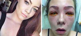 16 Yaşındaki Kız Güzelleşmek İçin Neredeyse Sağlığından Oluyordu Bu Ürünlerden Sizde de Varsa Kesinlikle Kullanmayın