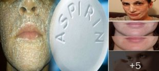 Aspirinin Ciltteki Mucizevi Etkisi