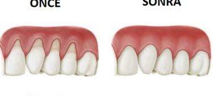 Diş Eti Çekilmesi İle Savaşan Doğal Malzemeler