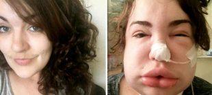 27 yaşındaki kadın boğaz ağrısı ve öksürük şikayetiyle doktora Gitti, Doktor o gerçeği açıkladı! Aile çaresiz kaldı