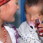 Bu Bebeğin Doğuştan Gözleri Yok Ancak Sürekli El Feneriyle Oynayınca Gerçekler Ortaya Çıktı