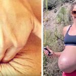 Şimdi Herkes Onu Cesaretinden Dolayı Övüyor Doğum Sonrası Vücudunda Olan Değişimleri İnternette Paylaştı