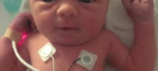 Ölmesine Kesin Gözüyle Bakılan Bebek Tıbbın Açıklayamadığı Bir Şekilde Hayata Tutundu