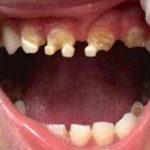 3 Yaşındaki Çocuğun Dişlerine Diş Hekimi Baktı Ve Annesine Bu İçecekten Çocuğuna Verip Vermediğini Sordu.
