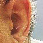 Kulak memeniz felç riskini ele veriyor