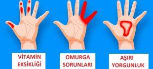 Elleriniz Vücut Sağlığınızla İlgili 7 Önemli Sinyal Veriyor