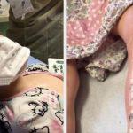 8 Yaşındaki Kızlarının Bacağı Sürekli Kaşınıyordu – Doktora Gösterdiklerinde Acı Gerçeği Öğrendiler