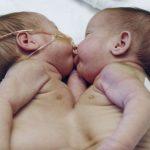 Doktorlar Yapışık İkizlerin Yaşama Şansının Yüzde 5 Olduğunu Söyledi – İkizler Şimdi 2 Yaşında