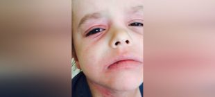 Doktorlar 6 Yaşında Çocuğun Ağrısını Önemsemedi. Anne Hastalığa Kendi Çözüm Buldu.