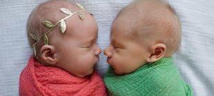 İkizlerden birinin 11 gün yaşayacağını öğrenince bunu yaptılar