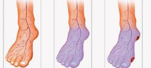 Yetersiz Kan Dolaşımı Nedeniyle Elleriniz ve Ayaklarınız Hep Soğuk Mu? İşte Size Çözüm!