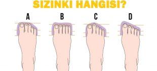 Ayak Parmaklarınız Kişiliğiniz Hakkında İpuçları Veriyor