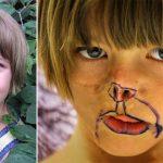 3 Aylıkken Suratı Tanınamaz Hale Geldi – 11 Yıl Sonra Böyle Değişti