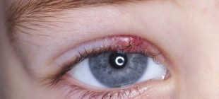 Uyandığınız Gözünüzü Bu Halde Bulursanız Hemen Şunları Yapın