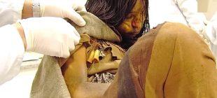 500 Yıl Önce Hayatını Kaybeden Genç Kız Sayesinde Birçok Hastalığın Tedavisi Bulunacak