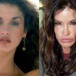 Yaptırdığı estetik ameliyatlarla bambaşka biri olan ünlüler