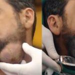 Suriyeli adamın boynundan çıkanlar şaşırttı! Kitle Sadece 4 Günde Bu Hale Geldi