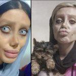Angelina Jolie'ye benzemek için ameliyat olduğunu söylemişti… Herkesi kandırdı mı?