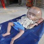 Kaderine Terkedilmiş Hasta Küçük Kızın 3 Yıl Sonraki Değişimine Doktorlar Bile İnanamadı.