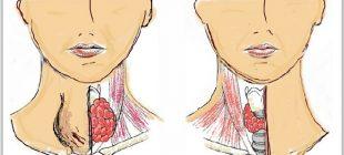 Bu 10 belirtiden 5'i sizde de varsa tiroit beziniz doğru çalışmıyor demektir