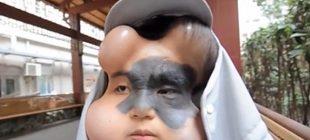 Çin'de Xiao Yan'ın yüzündeki ölümcül lekenin çıkartılması için sıradışı bir teknik uygulandı!