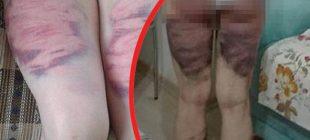 Eşini döven koca: 4-5 kez vurmuş olabilirim, ama darp etmedim