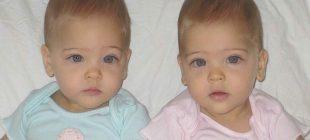 8 Yaşındaki Tek Yumurta İkizlerine Herkes Dünyanın En Güzel İkizleri Gözüyle Bakıyor