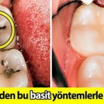 Dişteki oyukları doldurmanın ve çürükleri iyileştirmenin 8 basit yolu