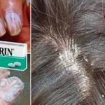 Aspirinin Farklı Kullanım Şekilleri Sizi Çok Şaşırtacak!