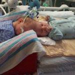ABD'de kafalarından yapışık olan 13 aylık ikiz kardeşler, 27 saat süren bir ameliyatla birbirinden ayrıldı…