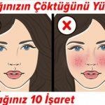 Bağışıklığınızın Çöktüğünü Yüzünüzden Anlayacağınız 10 İşaret