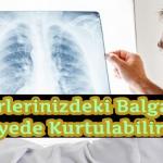Akciğerlerinizdeki Balgamdan Bu Sayede Kurtulabilirsiniz !