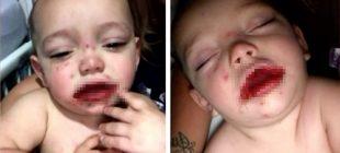 Bebeğine Koyulan Teşhisi Duyan Anne Yıkıldı Ve Şimdi Diğerlerini Uyarıyor