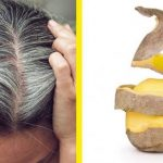 Sadece Patates Kullanarak Oluşan Beyaz Saçlardan Kurtulun! – Kesin Çözüm