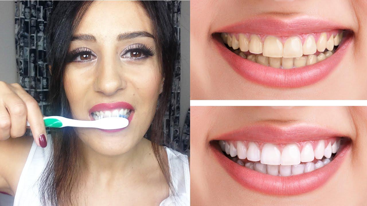 Diş Beyazlatmak için Doğal Yöntemler ve Bitkisel Çözümler