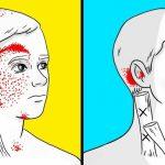 Şiddetli baş ağrısını şıp diye kesecek evde doğal tedavi teknikleri