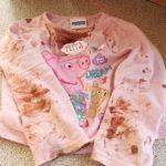 Kanlı Tişörtüyle Annesine Koştu – Annesi Olanları Farkedince Dehşete Düştü