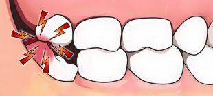 Diş Ağrısını Boşuna Çekmeyin Evde Kendiniz Ağrıyı Bıçak Gibi Kesebilirsiniz İşte O yöntemler