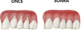 İnanılmaz: Diş eti çekilmesi ile savaşan doğal malzemeler