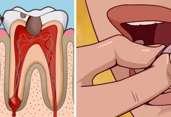Diş ağrısını çeken bilir üzülmeyin evde yapabileceğiniz ağrıyı bıçak gibi kesecek yöntemler var