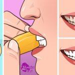Bembeyaz Dişlere Sahip Olmak için evde doğal diş beyazlatma yöntemleri