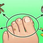 Ayak nasırlarını kökünden kazıyan evde yapabileceğiniz 7 denenmiş kanıtlanmış Yöntem