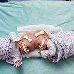 Siyam İkizlerinin Ayrılmasına İmkansız Gözüyle Bakılıyordu – 2 Yıl Sonra Bakın Nasıl Görünüyorlar