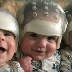 Dünyanın En Eşsiz Üçüzleri Geçirdikleri Tarihi Operasyondan Sonra İlk Kez Görüntülendiler Birbirlerine bu kadar benzeyen üçüz bebekler 500 trilyonda bir görülüyor!