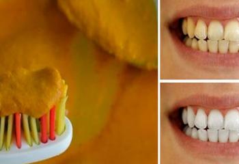 Sarı Durduğuna Bakmayın İster İnanın İster İnanmayın 3 Dakikada Dişleri Bembeyaz Yapıyor!