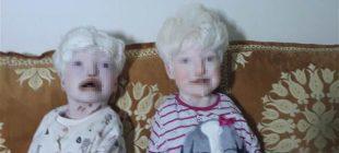 """Albino kardeşler yardım bekliyor """"İstanbul'a gitmemiz lazım…"""""""
