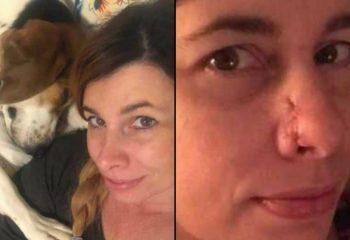 Sürekli Sahibinin Burnunu Kokluyordu – Kadın Doktora Gidince Duyduğuna İnanamadı